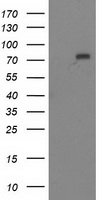 MTMR2 Antibody - HEK293T cells were transfected with the pCMV6-ENTRY control (Left lane) or pCMV6-ENTRY MTMR2 (Right lane) cDNA for 48 hrs and lysed. Equivalent amounts of cell lysates (5 ug per lane) were separated by SDS-PAGE and immunoblotted with anti-MTMR2.