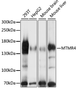 MTMR4 Antibody - Western blot analysis of extracts of various cell lines, using MTMR4 antibody at 1:1000 dilution. The secondary antibody used was an HRP Goat Anti-Rabbit IgG (H+L) at 1:10000 dilution. Lysates were loaded 25ug per lane and 3% nonfat dry milk in TBST was used for blocking. An ECL Kit was used for detection and the exposure time was 60s.