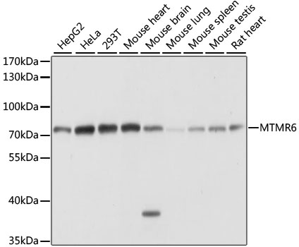 MTMR6 Antibody - Western blot analysis of extracts of various cell lines, using MTMR6 antibody at 1:1000 dilution. The secondary antibody used was an HRP Goat Anti-Rabbit IgG (H+L) at 1:10000 dilution. Lysates were loaded 25ug per lane and 3% nonfat dry milk in TBST was used for blocking. An ECL Kit was used for detection and the exposure time was 1s.
