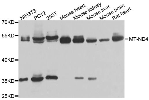 Mtnd4 Antibody - Western blot analysis of extracts of various cell lines, using MT-ND4 antibody at 1:1000 dilution. The secondary antibody used was an HRP Goat Anti-Rabbit IgG (H+L) at 1:10000 dilution. Lysates were loaded 25ug per lane and 3% nonfat dry milk in TBST was used for blocking. An ECL Kit was used for detection and the exposure time was 90s.