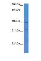 MTNR1A antibody Western blot of Jurkat Cell lysate. Antibody concentration 1 ug/ml.  This image was taken for the unconjugated form of this product. Other forms have not been tested.
