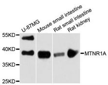 MTNR1A / Melatonin Receptor 1a Antibody - Western blot analysis of extracts of various cell lines, using MTNR1A antibody at 1:3000 dilution. The secondary antibody used was an HRP Goat Anti-Rabbit IgG (H+L) at 1:10000 dilution. Lysates were loaded 25ug per lane and 3% nonfat dry milk in TBST was used for blocking. An ECL Kit was used for detection and the exposure time was 90s.