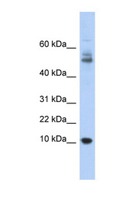 MTPN / Myotrophin Antibody - MTPN antibody Western blot of Fetal Thymus lysate. This image was taken for the unconjugated form of this product. Other forms have not been tested.