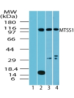 Western blot of MTSS1 in testis lysate: 1) pre immune sera, 2) human, 3) mouse and 4) rat testis using Polyclonal Antibody to MTSS1 at 4 ug/ml, 2 ug/ml and 2 ug/ml, respectively.