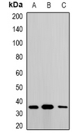 MTX1 / Metaxin 1 Antibody - Western blot analysis of Metaxin-1 expression in A549 (A); SKOV3 (B); mouse liver (C) whole cell lysates.