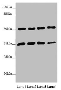 MTX1 / Metaxin 1 Antibody - Western blot All Lanes: MTX1 antibody at 3.78 ug/ml Lane 1: Jurkat whole cell lysate Lane 2: A549 whole cell lysate Lane 3: HepG-2 whole cell lysate Lane 4: MCF7 whole cell lysate Secondary Goat polyclonal to rabbit IgG at 1/10000 dilution Predicted band size: 52,49,36 kDa Observed band size: 51,36 kDa