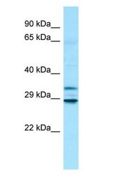 MTX3 Antibody - MTX3 antibody Western Blot of Fetal Heart.  This image was taken for the unconjugated form of this product. Other forms have not been tested.
