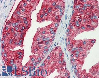 Anti-MUC13 antibody LS-A9862 IHC of human prostate. Immunohistochemistry of formalin-fixed, paraffin-embedded tissue after heat-induced antigen retrieval.