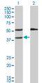 Western blot of MVK expression in transfected 293T cell line by MVK monoclonal antibody (M02), clone 2C5.