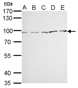 MVP/LRP antibody detects MVP protein by Western blot analysis. A. 30 ug Neuro2A whole cell lysate/extract. B. 30 ug GL261 whole cell lysate/extract. C. 30 ug C8D30 whole cell lysate/extract. D. 30 ug BCL-1 whole cell lysate/extract. E. 30 ug Raw264.7 whole cell lysate/extract. 7.5 % SDS-PAGE. MVP/LRP antibody dilution:1:1000
