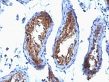Formalin-fixed, paraffin-embedded human testicular carcinoma stained with MVP antibody (SPM280).  This image was taken for the unmodified form of this product. Other forms have not been tested.