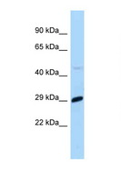 MXD1 / MAD1 Antibody - MXD1 / MAD antibody Western blot of Mouse Liver lysate. Antibody concentration 1 ug/ml.  This image was taken for the unconjugated form of this product. Other forms have not been tested.