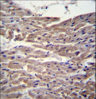 MYBPC3 / MYBP-C Antibody - MYBPC3 Antibody immunohistochemistry of formalin-fixed and paraffin-embedded human heart tissue followed by peroxidase-conjugated secondary antibody and DAB staining.