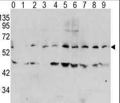 Western blot of Phospho-MYC-T58 Antibody in human TPA activated HeLa cell line lysates. Phospho-MYC (arrow) was detected using the purified antibody. (0: without TPA; 1: 60 ug/ml TPA, 15min; 2: 60 ug/ml TPA, 30min; 3: 60 ug/ml TPA, 45min; 4: 125 ug/ml TPA, 15min; 5: 125 ug/ml TPA, 30min; 6: 125 ug/ml TPA, 45min; 7: 250 ug/ml TPA, 15min; 8: 250 ug/ml TPA, 30min; 9: 250 ug/ml, 45min)