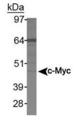 c-Myc Antibody (9E11) - Western blot of c-Myc in Jurkat whole cell lysate.  This image was taken for the unconjugated form of this product. Other forms have not been tested.