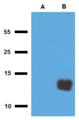 Mycobacterium tuberculosis Tb10.3 Antibody - Western blotting analysis of polyclonal anti-Mycobacterium tuberculosis antigen Tb10.3. A) cell lysate of non-transfected E. coli, B) cell lysate of Tb10.3-transfected E. coli