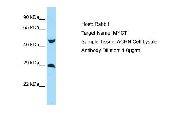 MYCT1 Antibody -  This image was taken for the unconjugated form of this product. Other forms have not been tested.