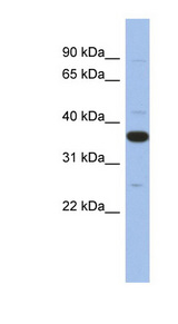 MYD88 antibody LS-C111897 Western blot of Fetal Heart lysate.  This image was taken for the unconjugated form of this product. Other forms have not been tested.