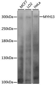 MYH13 Antibody - Western blot analysis of extracts of various cell lines, using MYH13 antibody at 1:1000 dilution. The secondary antibody used was an HRP Goat Anti-Rabbit IgG (H+L) at 1:10000 dilution. Lysates were loaded 25ug per lane and 3% nonfat dry milk in TBST was used for blocking. An ECL Kit was used for detection and the exposure time was 20s.