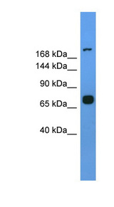 MYH7 antibody Western blot of Mouse Spleen lysate. This image was taken for the unconjugated form of this product. Other forms have not been tested.