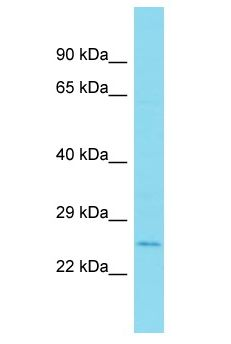 MYL10 antibody Western Blot of 721_B. Antibody dilution: 1 ug/ml.  This image was taken for the unconjugated form of this product. Other forms have not been tested.