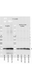MYL12A / MRCL3 Antibody - Affinity Purified Phospho specific antibody to Monophosphorylated Regulatory Light Chain of Smooth and Non-muscle Myosin at pS19/pS20 was used at a 1:5000 dilution to detect myosin light chain by Western blot. Either 13 or 20 µl of a mouse cardiac myocyte lysate was loaded on a 4-20% Criterion gel for SDS-PAGE. Samples were either mock-treated or CLA-treated, as indicated. After washing, a 1:5,000 dilution of HRP conjugated Gt-a-Rabbit IgG preceded color development using Amersham's substrate system. Other detection methods will yield similar results. Data courtesy of the Alliance for Cellular Signaling (http://www.signaling-gateway.org).