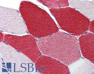 Anti-MYL6 antibody IHC of human skeletal muscle. Immunohistochemistry of formalin-fixed, paraffin-embedded tissue after heat-induced antigen retrieval. Antibody LS-B4025 concentration 5 ug/ml.  This image was taken for the unconjugated form of this product. Other forms have not been tested.