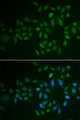 Immunofluorescence analysis of U2OS cells.