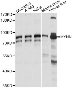 MYNN Antibody - Western blot analysis of extracts of various cell lines, using MYNN antibody at 1:1000 dilution. The secondary antibody used was an HRP Goat Anti-Rabbit IgG (H+L) at 1:10000 dilution. Lysates were loaded 25ug per lane and 3% nonfat dry milk in TBST was used for blocking. An ECL Kit was used for detection and the exposure time was 1s.