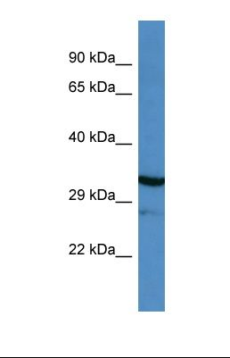 Western blot of Human ACHN whole cell. MYOC antibody dilution 1.0 ug/ml.  This image was taken for the unconjugated form of this product. Other forms have not been tested.