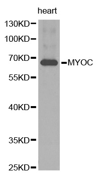Western blot analysis of extracts of human heart tissue, using MYOC antibody.