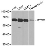 Western blot analysis of extracts of various cell lines, using MYOC antibody at 1:1000 dilution. The secondary antibody used was an HRP Goat Anti-Rabbit IgG (H+L) at 1:10000 dilution. Lysates were loaded 25ug per lane and 3% nonfat dry milk in TBST was used for blocking. An ECL Kit was used for detection and the exposure time was 60s.
