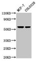Positive Western Blot detected in MCF-7 whole cell lysate, COLO320 whole cell lysate. All lanes: MYOC antibody at 5.2 µg/ml Secondary Goat polyclonal to rabbit IgG at 1/50000 dilution. Predicted band size: 57 KDa. Observed band size: 57 KDa