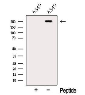 MYOF / Myoferlin Antibody - Western blot analysis of extracts of A549 cells using Myoferlin antibody. The lane on the left was treated with blocking peptide.