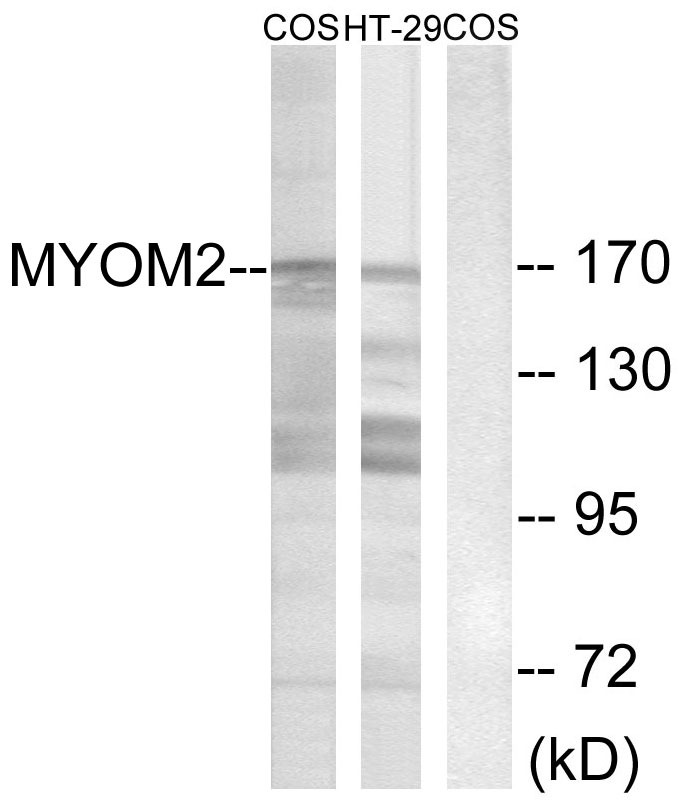 Western blot analysis of lysates from COS7 and HT-29 cells, using MYOM2 Antibody. The lane on the right is blocked with the synthesized peptide.