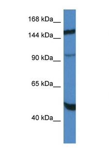 MYPN Antibody - MYPN antibody Western blot of HepG2 Cell lysate. Antibody concentration 1 ug/ml.  This image was taken for the unconjugated form of this product. Other forms have not been tested.
