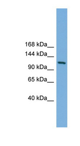 MYT1 Antibody - MYT1 antibody Western blot of Mouse Uterus lysate. This image was taken for the unconjugated form of this product. Other forms have not been tested.