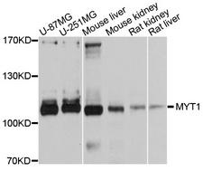 MYT1 Antibody - Western blot analysis of extracts of various cell lines, using MYT1 antibody at 1:1000 dilution. The secondary antibody used was an HRP Goat Anti-Rabbit IgG (H+L) at 1:10000 dilution. Lysates were loaded 25ug per lane and 3% nonfat dry milk in TBST was used for blocking. An ECL Kit was used for detection and the exposure time was 5s.