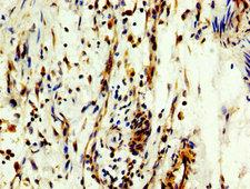 MYT1 Antibody - Immunohistochemistry image at a dilution of 1:300 and staining in paraffin-embedded human bladder cancer performed on a Leica BondTM system. After dewaxing and hydration, antigen retrieval was mediated by high pressure in a citrate buffer (pH 6.0) . Section was blocked with 10% normal goat serum 30min at RT. Then primary antibody (1% BSA) was incubated at 4 °C overnight. The primary is detected by a biotinylated secondary antibody and visualized using an HRP conjugated SP system.