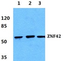 Western blot (WB) analysis of Anti-ZNF42 Antibody at 1:500 dilution. Lane1: HEK293T cell lysate. Lane2: sp2/0 cell lysate. Lane3: PC12 cell lysate.