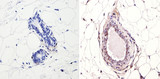 IHC (P) using NCoR Antibody