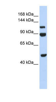 NAA16 / NARG1L antibody LS-C111204 Western blot of 293T cell lysate.  This image was taken for the unconjugated form of this product. Other forms have not been tested.