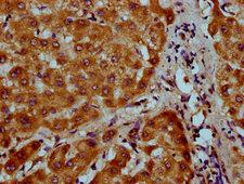 NAAA / ASAHL Antibody - Immunohistochemistry Dilution at 1:200 and staining in paraffin-embedded human liver tissue performed on a Leica BondTM system. After dewaxing and hydration, antigen retrieval was mediated by high pressure in a citrate buffer (pH 6.0). Section was blocked with 10% normal Goat serum 30min at RT. Then primary antibody (1% BSA) was incubated at 4°C overnight. The primary is detected by a biotinylated Secondary antibody and visualized using an HRP conjugated SP system.