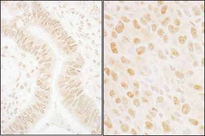 Detection of Human and Mouse SSB1 by Immunohistochemistry. Sample: FFPE sections of human colon carcinoma (left) and mouse squamous cell carcinoma (right). Antibody: Affinity purified rabbit anti-SSB1 used at a dilution of 1:1000 (1 ug/ml). Detection: DAB.