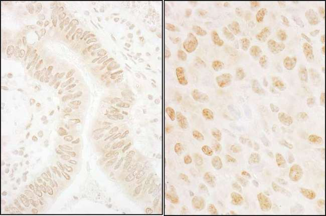 NABP2 Antibody - Detection of Human and Mouse SSB1 by Immunohistochemistry. Sample: FFPE sections of human colon carcinoma (left) and mouse squamous cell carcinoma (right). Antibody: Affinity purified rabbit anti-SSB1 used at a dilution of 1:1000 (1 ug/ml). Detection: DAB.