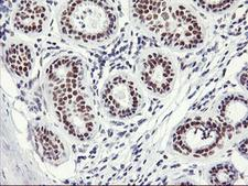 NABP2 Antibody - IHC of paraffin-embedded Human breast tissue using anti-OBFC2B mouse monoclonal antibody.