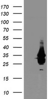 NABP2 Antibody - HEK293T cells were transfected with the pCMV6-ENTRY control (Left lane) or pCMV6-ENTRY OBFC2B (Right lane) cDNA for 48 hrs and lysed. Equivalent amounts of cell lysates (5 ug per lane) were separated by SDS-PAGE and immunoblotted with anti-OBFC2B.