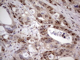 Immunohistochemical staining of paraffin-embedded Adenocarcinoma of Human colon tissue using anti-NAE1 mouse monoclonal antibody. (Heat-induced epitope retrieval by 1 mM EDTA in 10mM Tris, pH8.5, 120C for 3min,