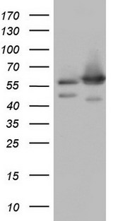 HEK293T cells were transfected with the pCMV6-ENTRY control (Left lane) or pCMV6-ENTRY NAE1 (Right lane) cDNA for 48 hrs and lysed. Equivalent amounts of cell lysates (5 ug per lane) were separated by SDS-PAGE and immunoblotted with anti-NAE1.