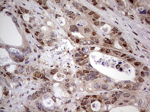 NAE1 / APPBP1 Antibody - IHC of paraffin-embedded Adenocarcinoma of Human colon tissue using anti-NAE1 mouse monoclonal antibody. (Heat-induced epitope retrieval by 1 mM EDTA in 10mM Tris, pH8.5, 120°C for 3min).